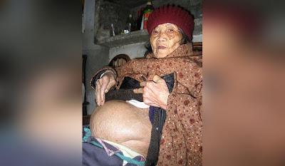 Más de 60 años de embarazo