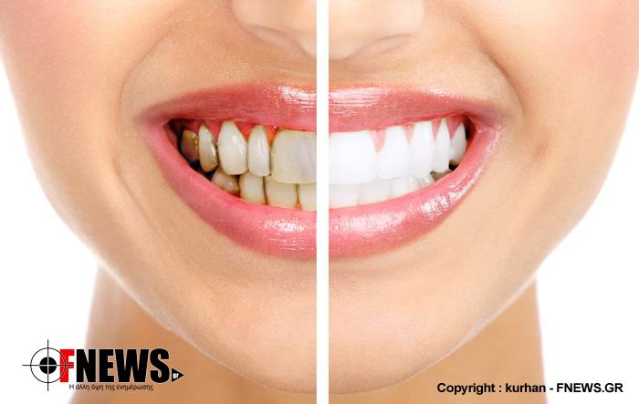 Πως να γίνουν κάτασπρα τα δόντια σας σε μόλις 3 λεπτά