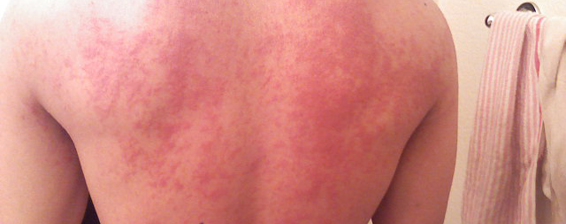 Allergic Reaction To Crab Cakes