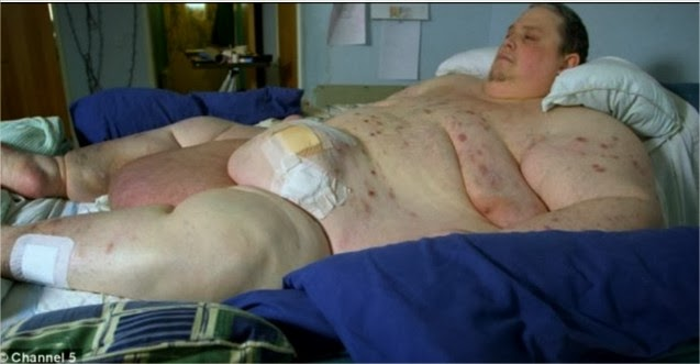 Homem de 444 kg  não consegue se levantar