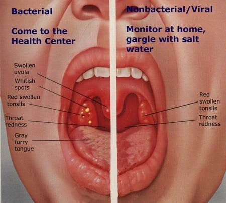 Bacterial infections of the tonsils and adenoids are treated with ...