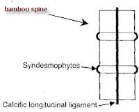 Ankylosing-Spondylitis