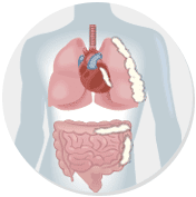 mesothelioma cancer and naturally occurring minerals Asbestos is a set of six naturally occurring silicate minerals fibers can cause serious and fatal illnesses including lung cancer, mesothelioma.