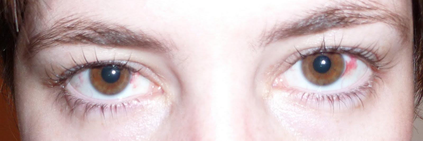 voile aux yeux et malaise