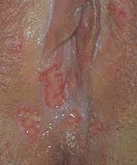 Bintik-bintik merah pada vagina