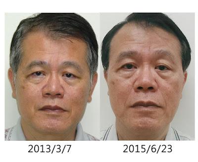 楊進順醫師 白藜蘆醇親身體驗記錄
