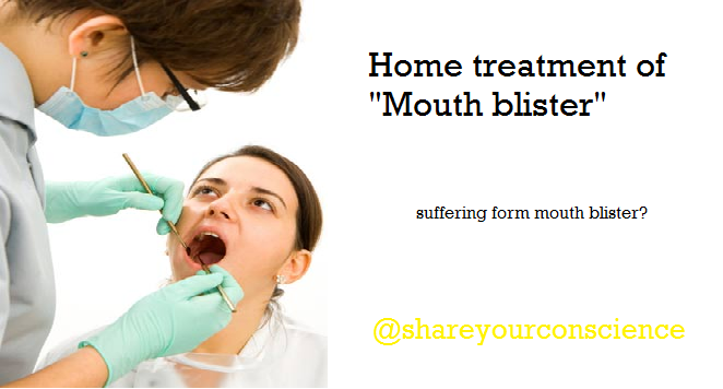 Home treatment for Mouth Blister