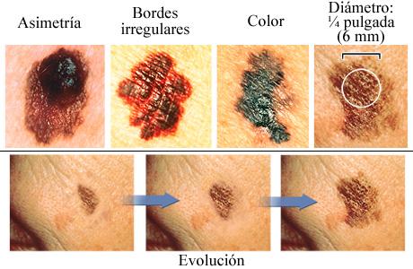 Como arreglar de pigmento la mancha de la persona