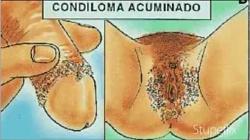 La Salud Del Pene Y Los Condilomas o Verrugas Genitales