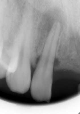 fracture, root fracture, crown, radiolucency, endodontics, extraction, dental trauma