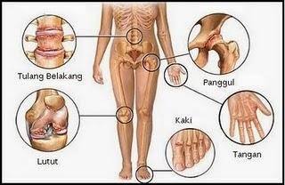 asam urat, gejala asam urat, gejala penyakit asam urat, penyebab asam urat, asam urat basah, asam urat kering