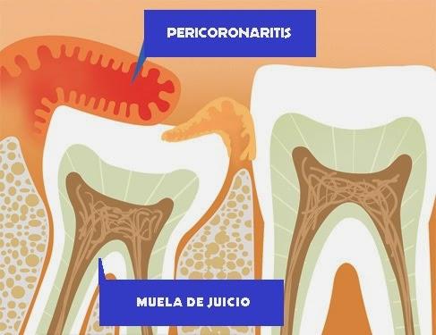 DIENTES SANOS: Cordales, terceros molares, muelas del juicio...