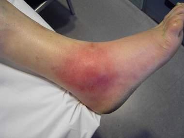 fotos acido urico en los pies que medicamento es bueno para bajar el acido urico acido urico y urea en sangre