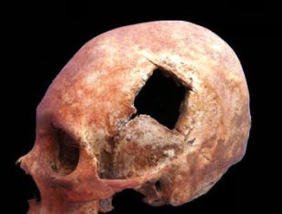 Los cirujanos Incas y las cirugías de cráneo.