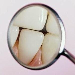 bande blanchissante pour les dents