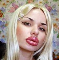 gambar penyakit bibir