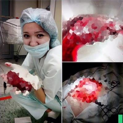 Kejadian Konyol dan Berbahaya Yang Terjadi Saat Operasi