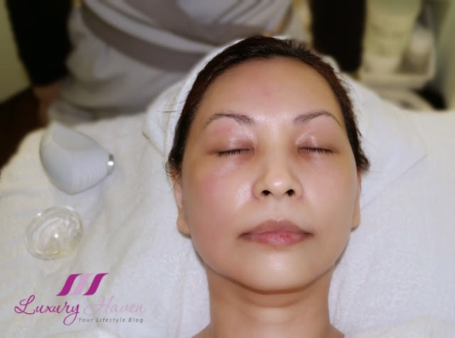 immortelle atelier filorga cryolift results