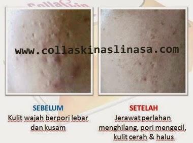 collaskin untuk kulit wajah