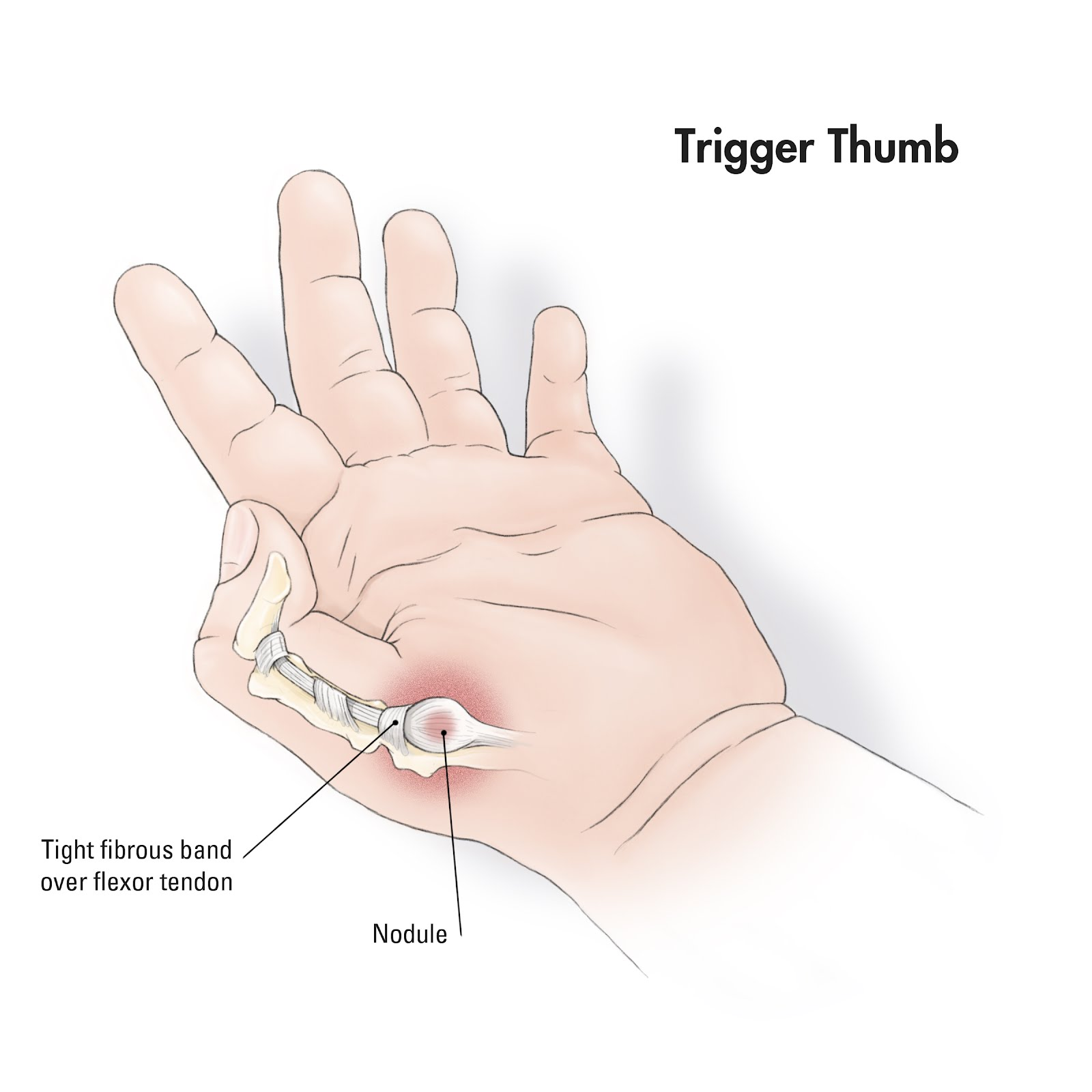 Image Result For Tip Of Thumb Pain