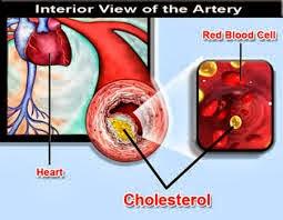 Ciri Ciri Dan Tanda Tanda Penyakit Kolesterol