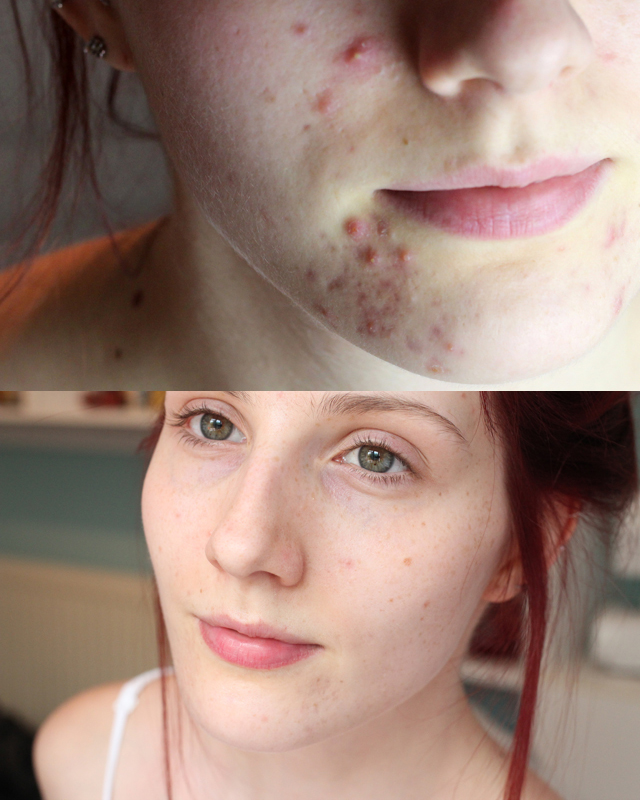 Adapalene Acne Red Marks