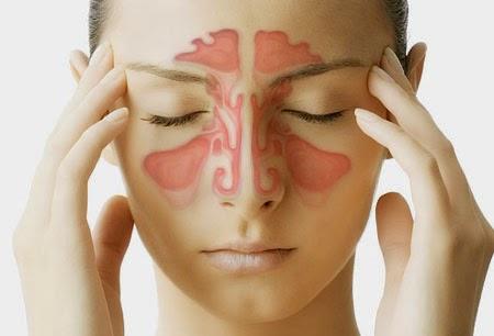 Penyebab Penyakit Infeksi Sinusitis