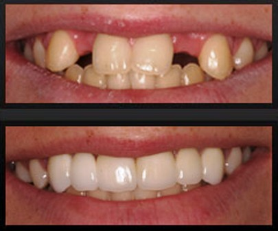 implante-de-dentes-fotos.jpg