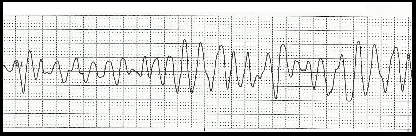 Float Nurse: ECG Rhythm Strip Quiz 97: Ventricular Rhythms