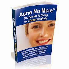 "<a href=""http://health.producrate.com/acne-no-more/"">Mike Walden Online Product</a>"