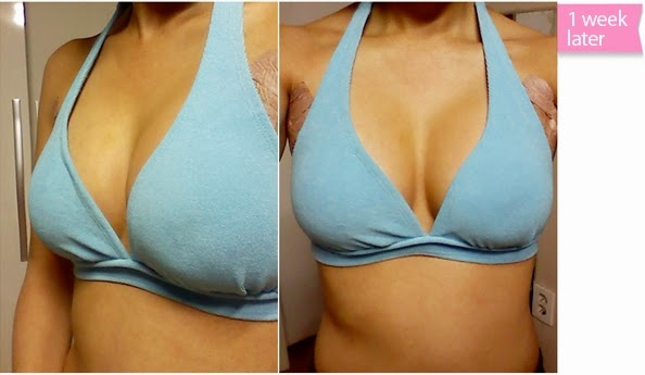 breast plastic surgery after photos-3