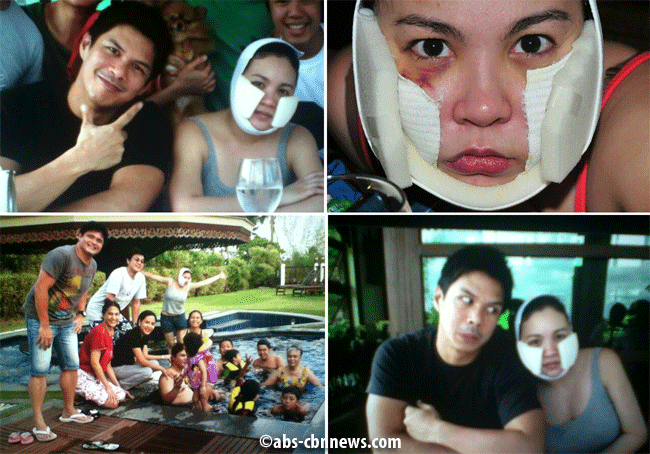 The Truth Behind Claudine's Bruises Revealed by Raymart Santiago