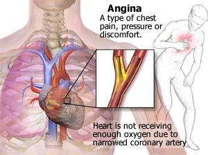obat tradisional angina pectoris