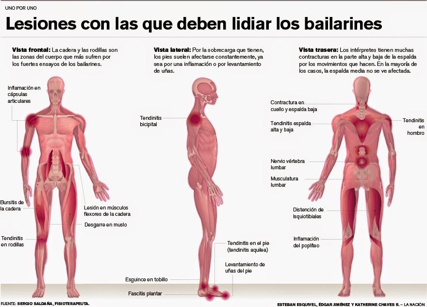 Excepcional Anatomía De Un Bailarín Viñeta - Imágenes de Anatomía ...