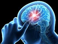 6 Cara Alami Sembuhkan Migrain