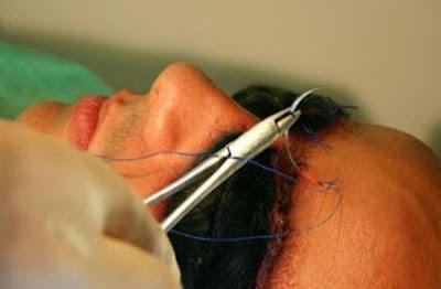Shocking photos:Brazilian Man gets dogface by plastic surgery