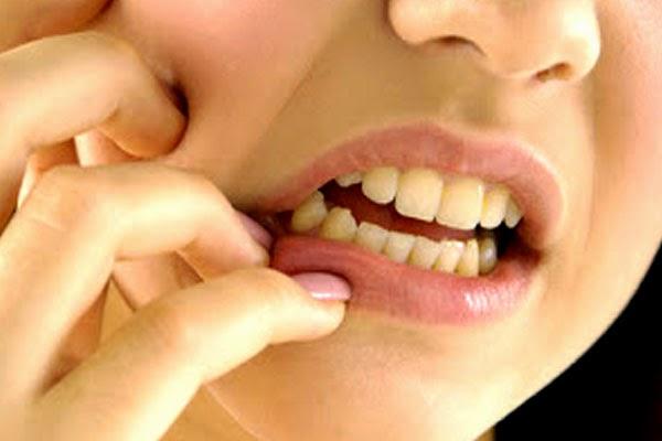 Cara Mengobati Sakit Gigi Dengan Mudah Pakai Obat Tradisional