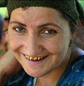altro che collier, me faccio un sorriso d'oro!