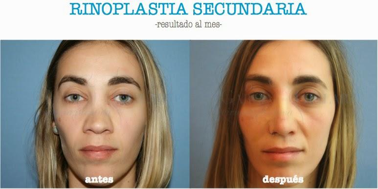 rinoplastia_secundaria_madrid