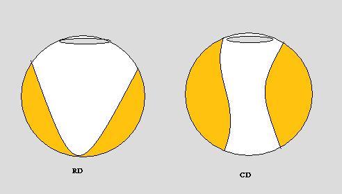 Retinal Vs Choroidal Detachment MRI