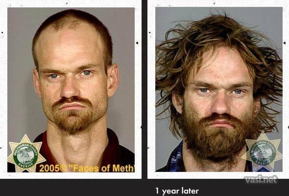 wajah ke 9 Wajah Para Pemakai Narkoba Sebelum Dan Sesudah Kecanduan