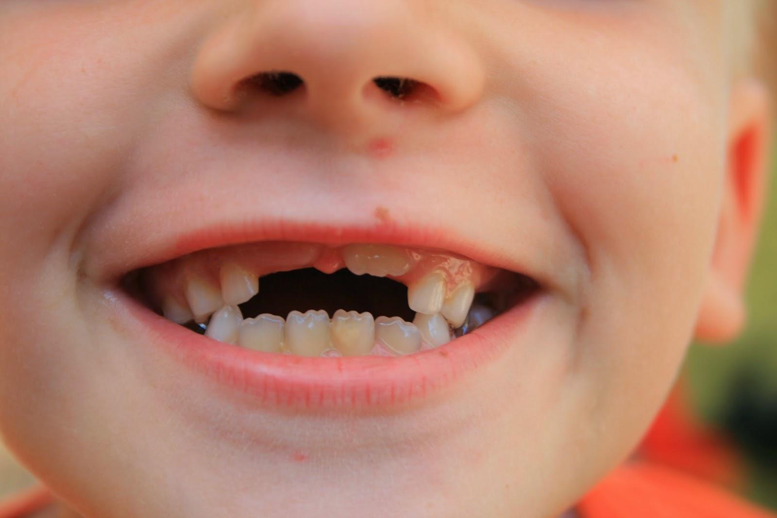 Рост зубов у детей до года фото