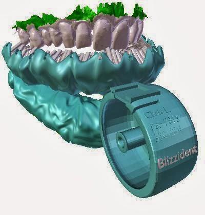 Sikat Gigi 3D Ini Mampu Membersihkan Gigi Anda Dalam 6 Detik