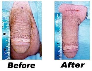 Penis Enlargement Centre: Penis Enlargement Surgery