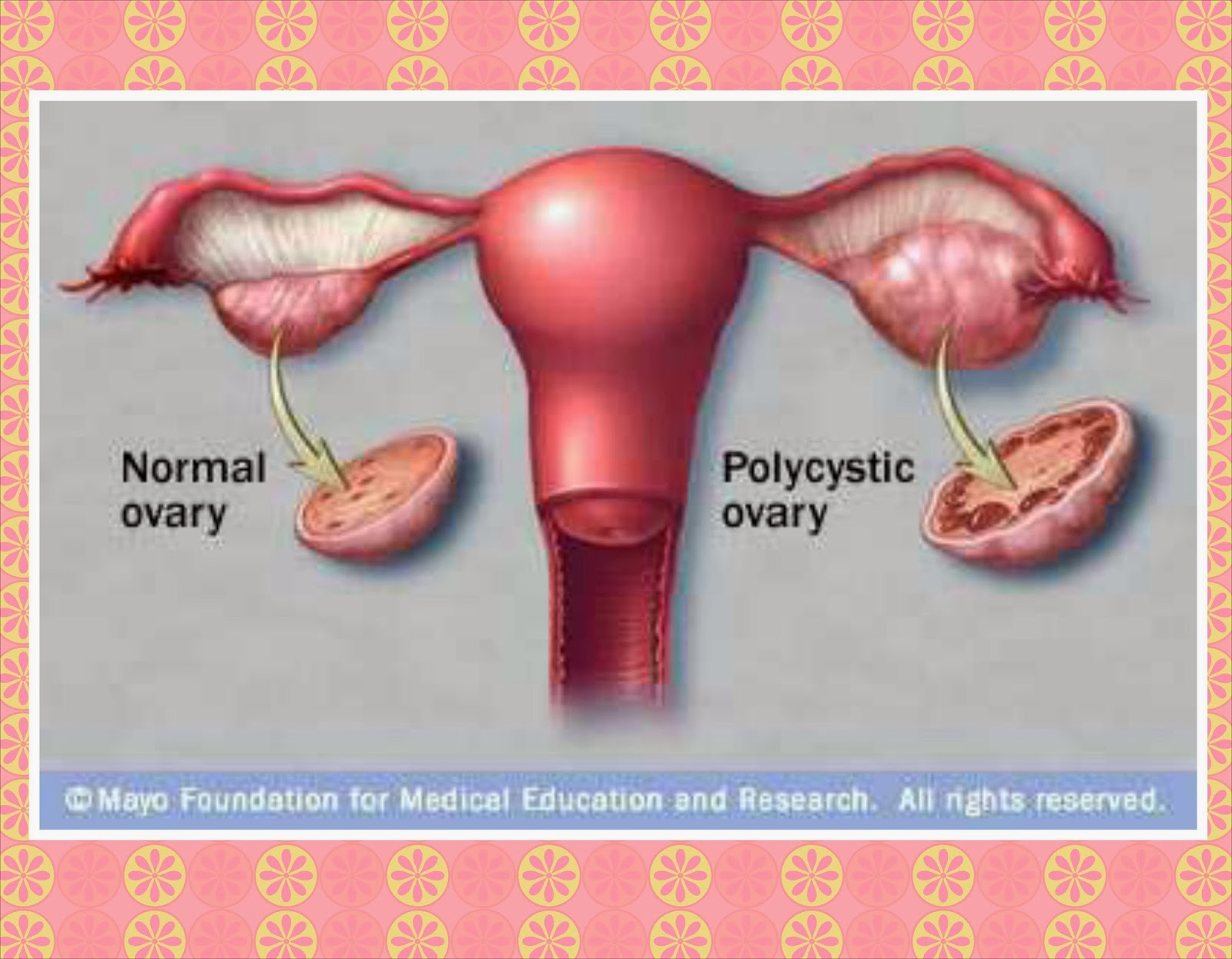Metformin for Polycystic Ovarian Syndrome