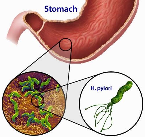 bakteria H. pylori, gastrik, set gastrik shaklee, punca, simptom penawar gastrik