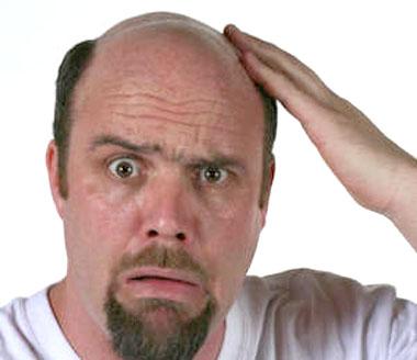 Bagaimana Mencegah Rambut Rontok?