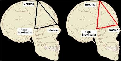 Proporción anatómica craneal