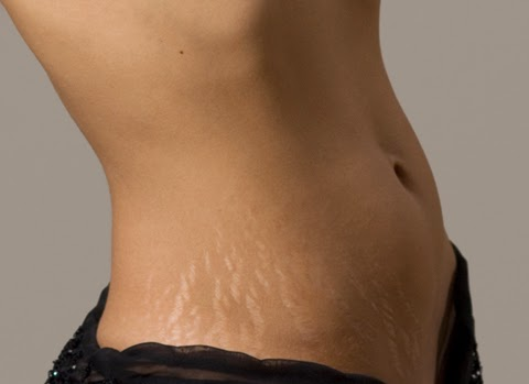 Natural Tips To Avoid Stretch Marks