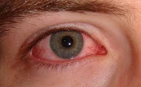 4 kondisi mata menjadi penanda sakit